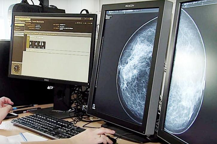 mamoografiya